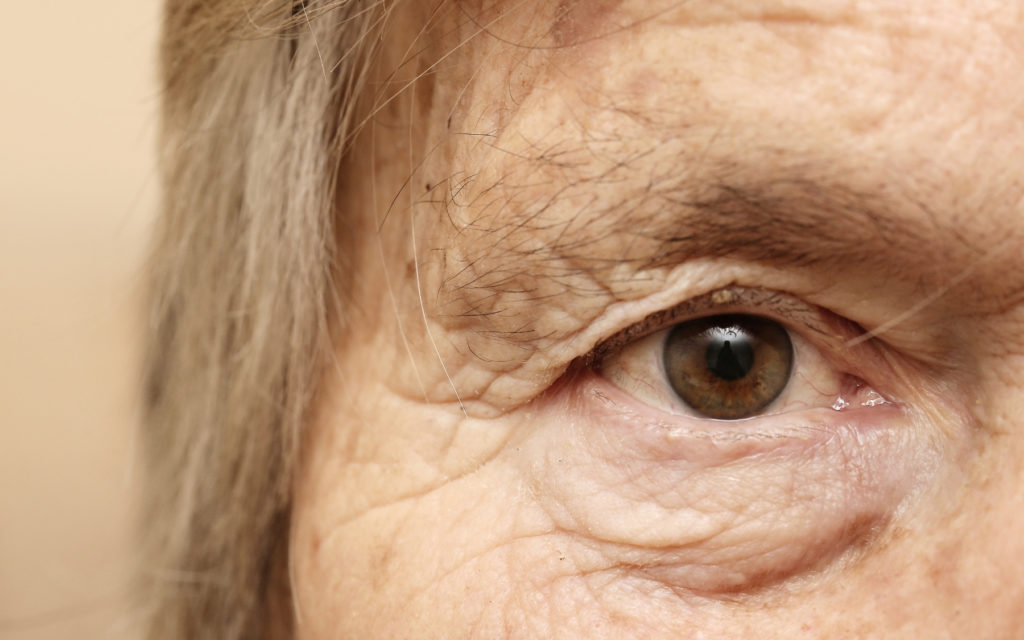 glaucoma a deep dive in to an older woman eye